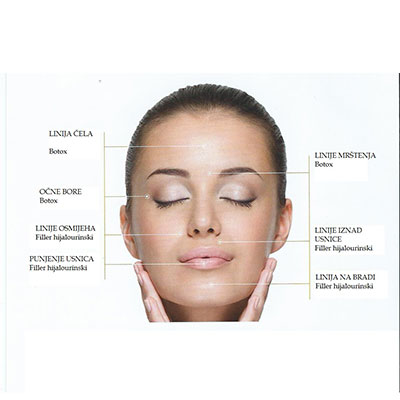 TISSUE FILLERS, BOTOX, MESOTHERAPY (NON-SERGICAL FACE LIFT)
